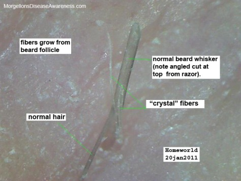 2beard_follicle.81124257_std
